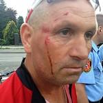 Zderzenie rowerzystów na nowej ścieżce. Ucierpiał Picek