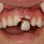 Agresywny 15-latek wybił rówieśnikowi 2 zęby
