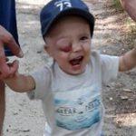 Szymek będzie mieć usunięte oko. Rodzina dostała olbrzymie wsparcie